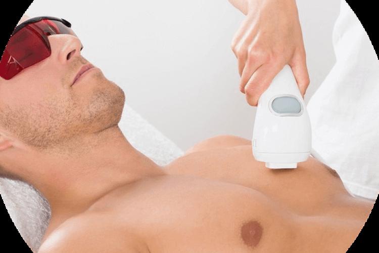 Лазерная эпиляция груди и живота: особенности процедуры