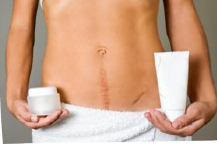 Методы лечения послеоперационных рубцов