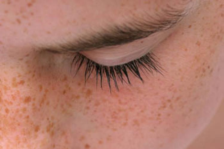 Нарушения в пигментации кожи их причины и лечение