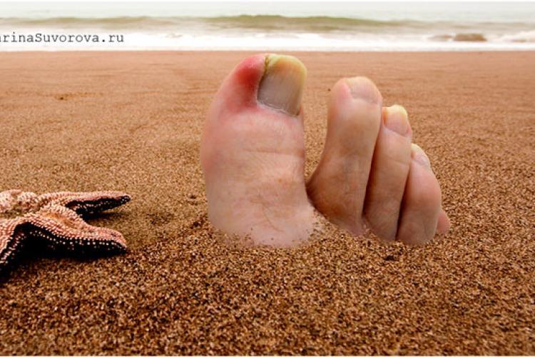 Лазерное лечение вросшего ногтя