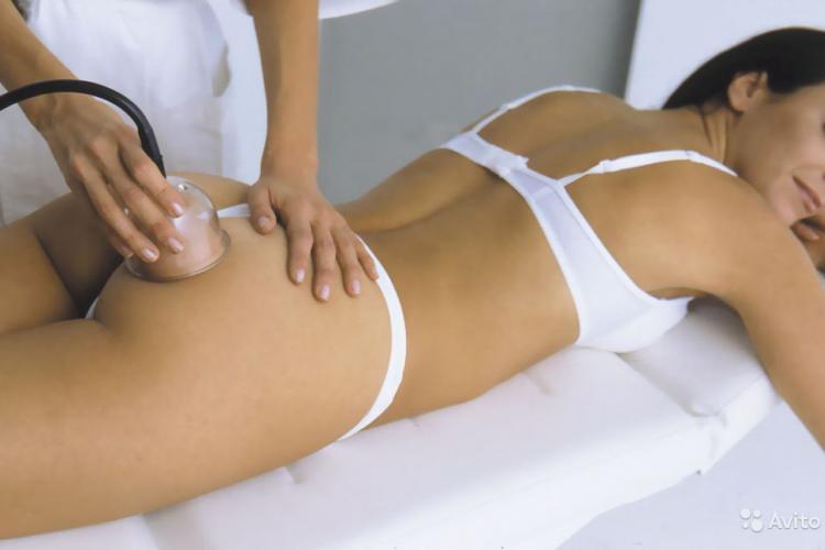 Проведение антицеллюлитного вакуумного массажа