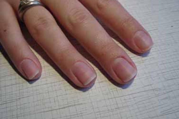 Быстро лечим ногти после снятия с них гель-лака